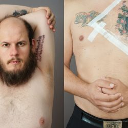 "Photograph from ""Haut, Stein"" by Jakob Ganslmeier in which he shows former neo-Nazis and the removal of right-wing tattoos from their bodies. © Jakob Ganslmeier"